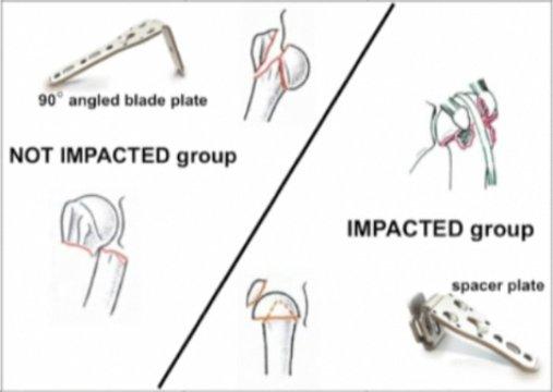Understanding the Humeral Neck Fractures | VuMedi